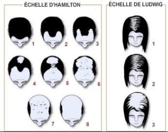la perte de cheveux datant